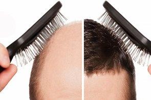 hajbeültetés